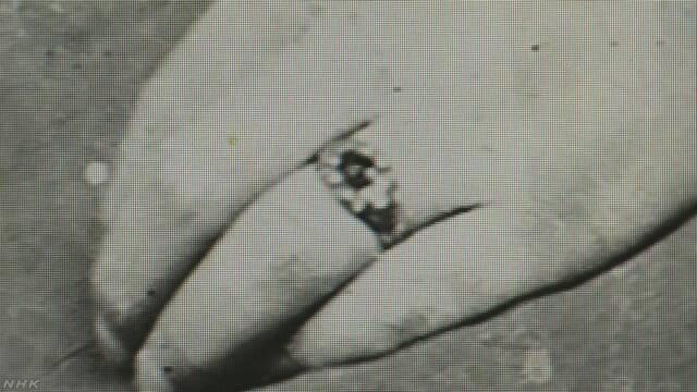 「150年前の日本人が指輪をしていたことがわかった」