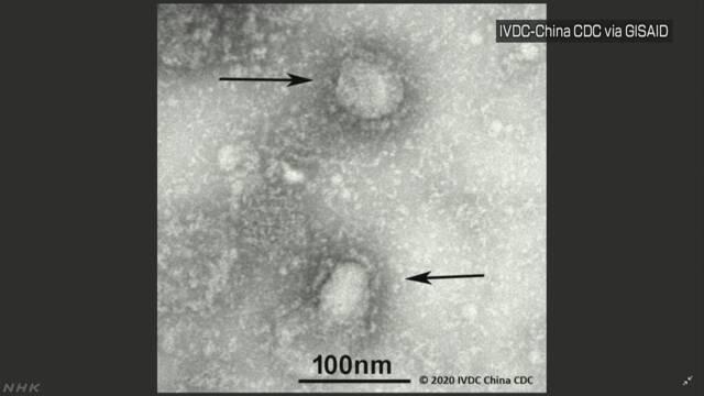 新型ウイルス アルジェリアで初の感染確認